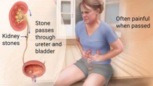 Is it a Kidney Stone?